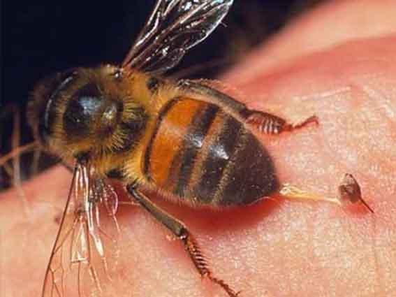 есть ли аллергия на воздух